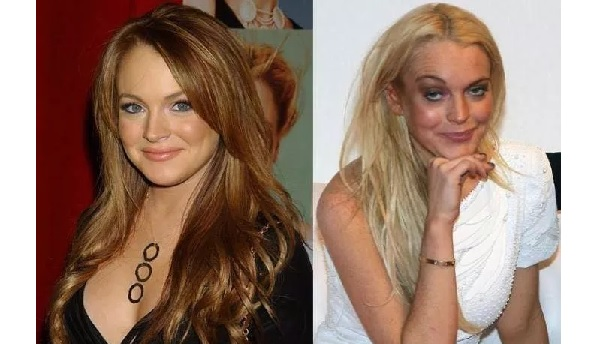 five-celebrities-who-have-aged-horribly